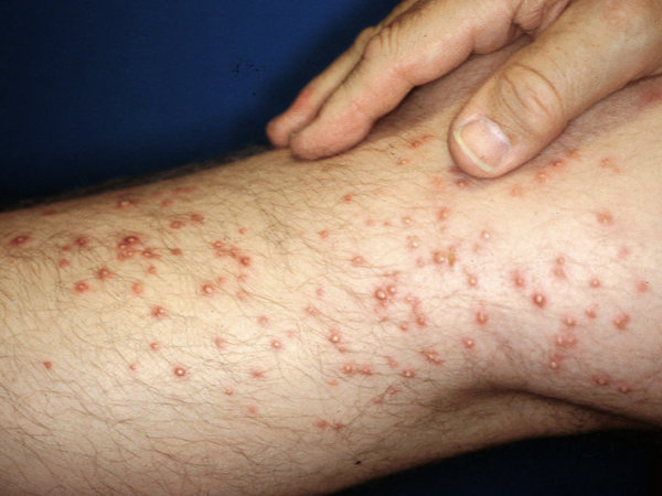 Fire ant bites on a person's knee